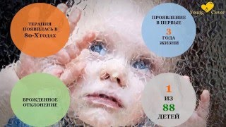 Аутизм за 5 минут. Основные признаки аутизма. Статистика заболеваемости аутизмом. Причины аутизма.