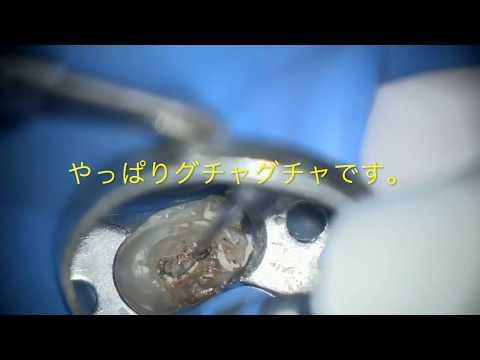 歯科用顕微鏡を使用した感染根管治療について千代田区 御茶ノ水 杏雲ビル歯科