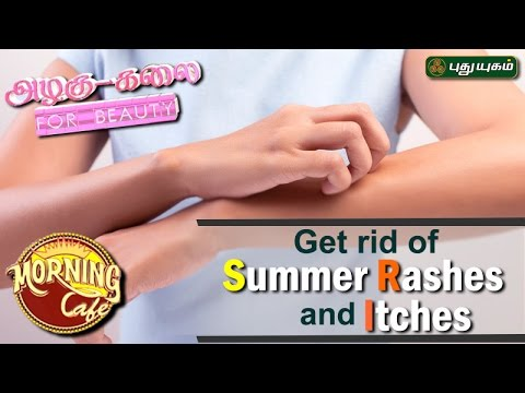 Ways to Get Rid of itchy Rashes on skin அழகு கலை For Beauty Morning Cafe 05-04-2017 PuthuYugamTV Show Online
