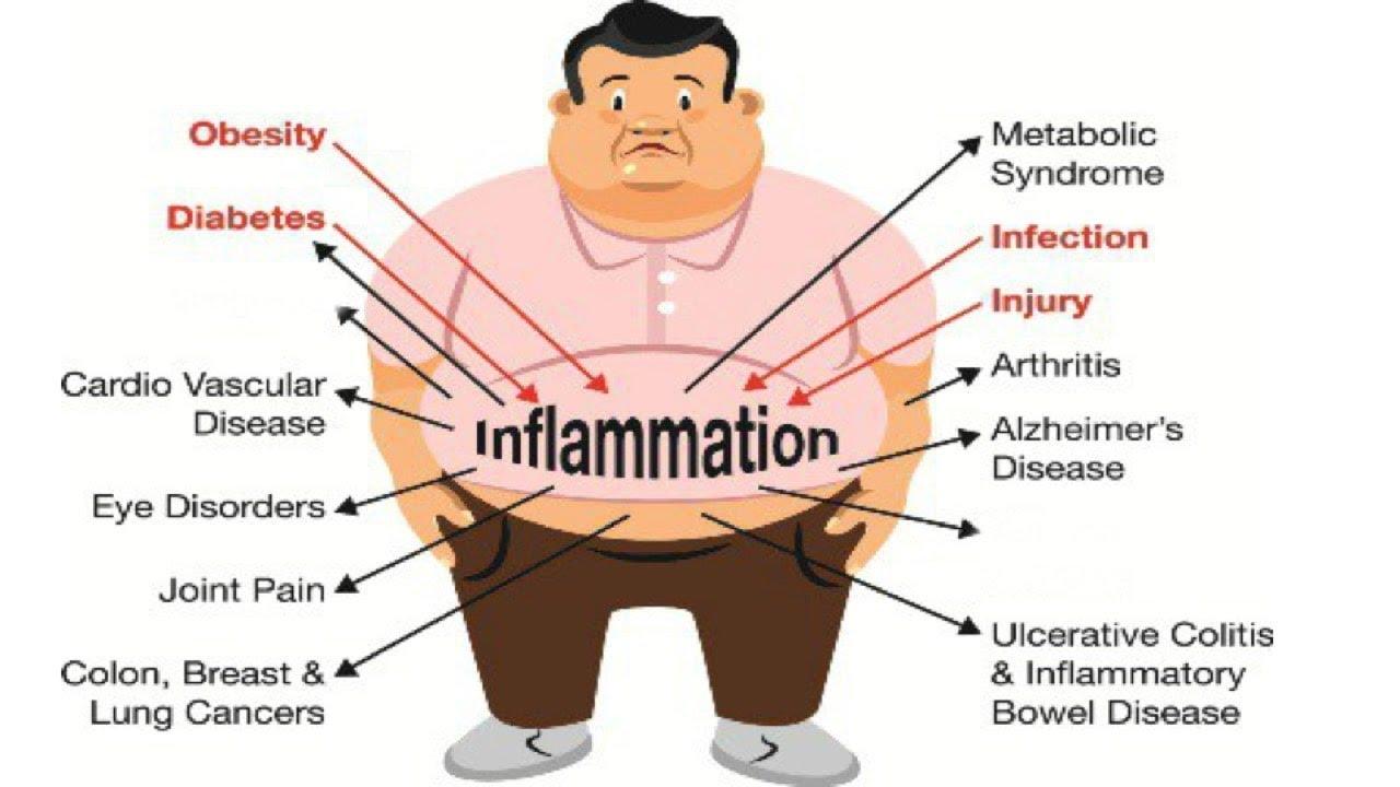Chronic Disease Indicators