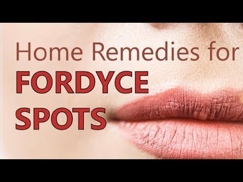 Home Remedies for Fordyce Spots - Treatment Methods, Natural Cure by Health  Den