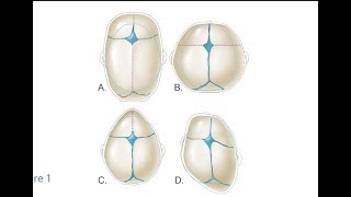 Craniosynostosis: Treatment Options for Sagittal Synostosis   Part 5 of 6.