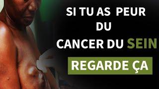 Voici comment les femmes attrapent le cancer du sein