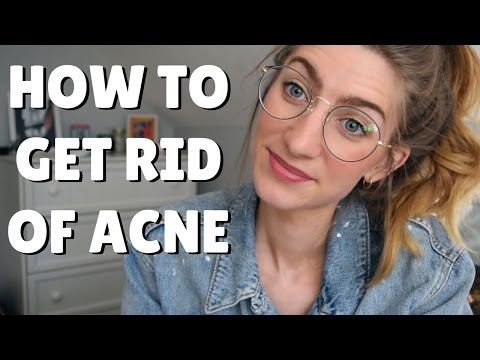 how-to-get-rid-of-acne