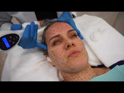 Nonsurgical skin tightening using Thermage CPT by Dr. Shaun Patel in Miami, FL
