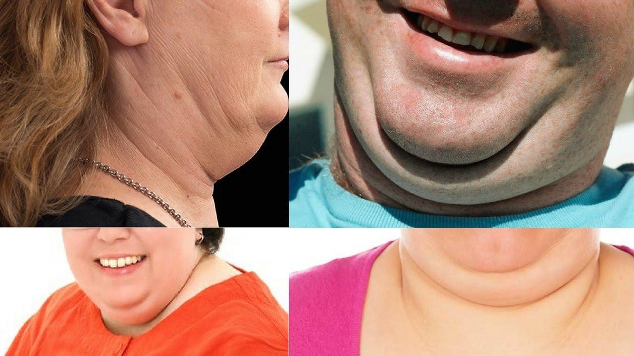 消除雙下巴 每天5秒鐘 - YouTube
