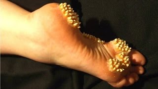 Plantar Wart Removal WARNING! Shocking Truth at The End
