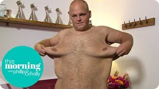 Dibsy Needs Excess Skin Removed After Incredible 19 Stone Weight Loss | This Morning