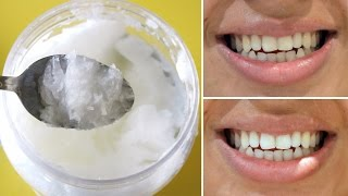 Say Goodbye to Oral Health Problems with This Natural Remedy