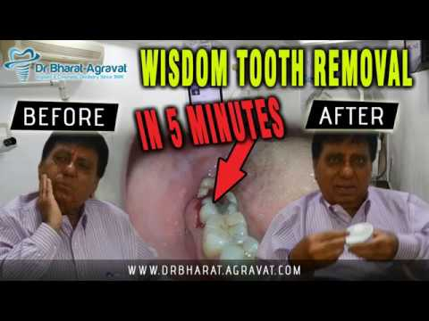 Wisdom Tooth Removal In 5 Minutes Dubai Businessman Review Painless Surgery Amazing Aftercare Youtube