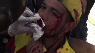 Venezuelan violinist hurt in anti-government protest