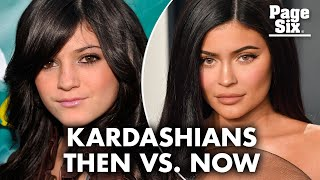 The Kardashian-Jenner faces before and after stardom | Page Six Celebrity News
