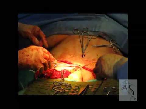 mommy makeover - abdominoplasty - tummy tuck 2