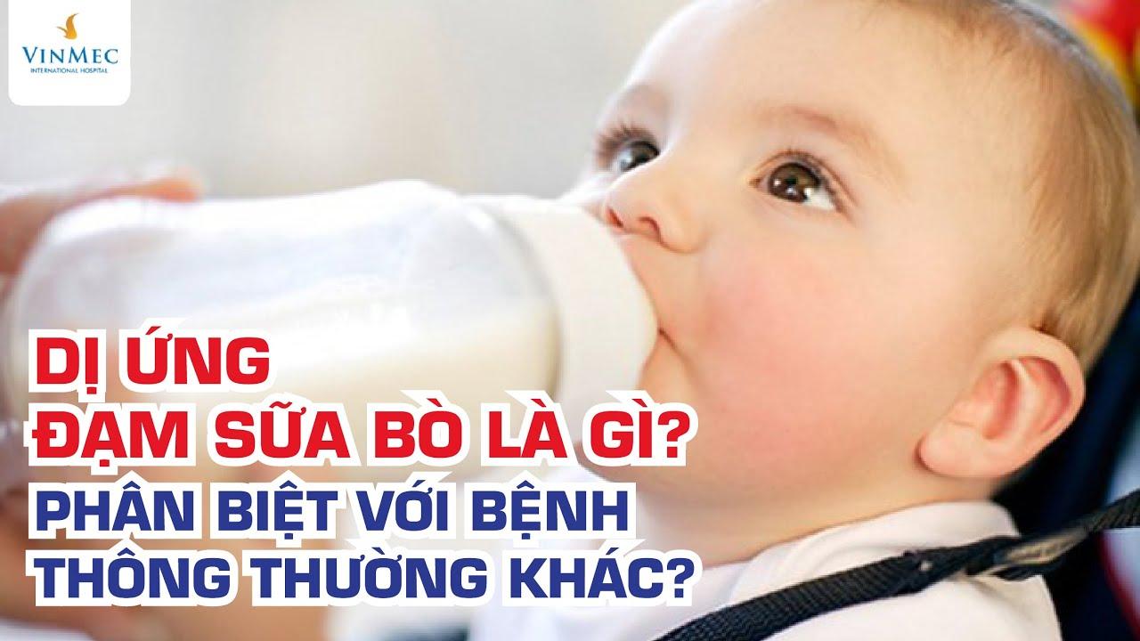 Dị ứng đạm sữa bò là gì? Ths, BS Nguyễn Duy Bộ – Vinmec Times City (Hà Nội)