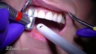 Replacing old porcelain dental veneers before and after
