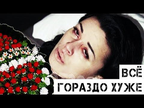 «Не рак!» Чем на самом деле больна Анастасия Заворотнюк