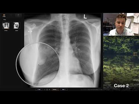 Isolation Tutorial: Chest X-ray With Andrew Dixon