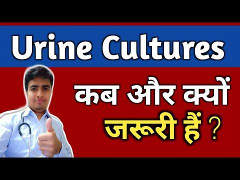 Urine Culture Test In Hindi !! Urine Culture !! Benefits !! Urine Cultures Test