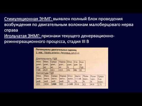 Аутоиммунные невропатии -