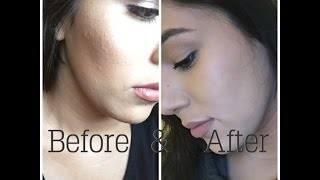 How I got rid of tiny face bumps + Current skin care routine