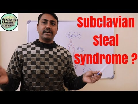 Anatomical Basis Of Subclavian Steal Syndrome
