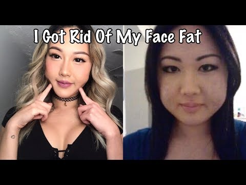 MOONFACE: Why we get it, advice and Makeup tips