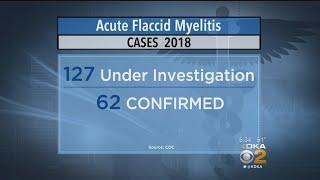 Federal Health Officials Investigating Rare Disease Plaguing Children