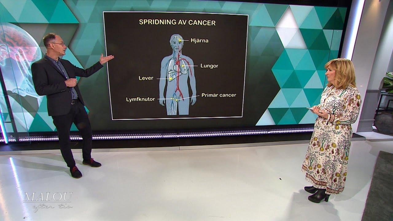 Så sprids cancer - Malou Efter tio (TV4)