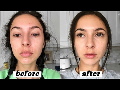 how-i-cleared-my-acne-in-one-month- -supplements-&-skincare-+-off-birth-control