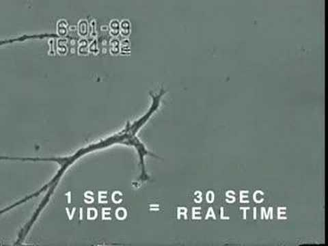 How Mercury Causes Brain Neuron Damage - Uni. of Calgary