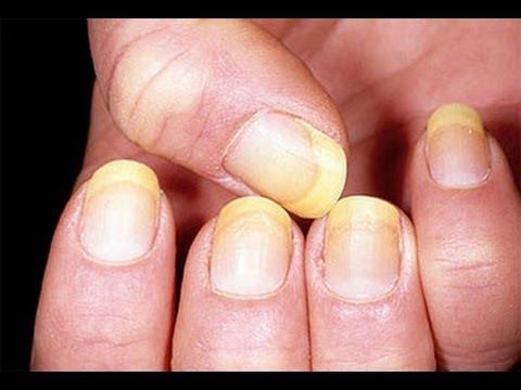 Le jaunissement des ongles  Les causes principales.