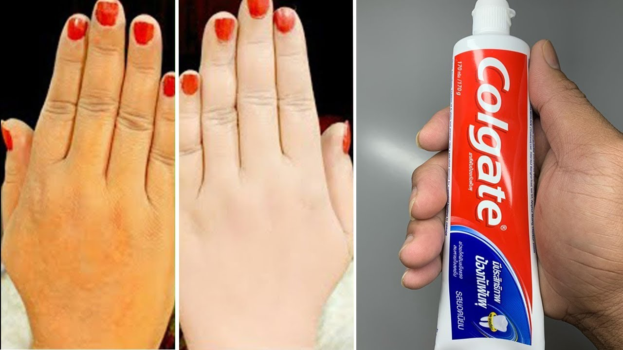 Skin Whitening Colgate Toothpaste At Home Remedies  Traditional Beauty Tips
