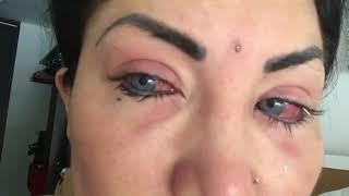 Надин Бруна потеряла зрение из-за операции по смене цвета глаз