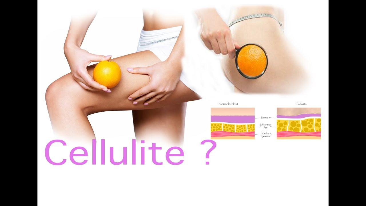 Cellulite Schnell Bekämpfen