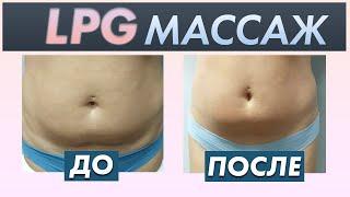 постер к видео Аппаратный массаж для похудения   LPG массаж, RF лифтинг, советы косметолога