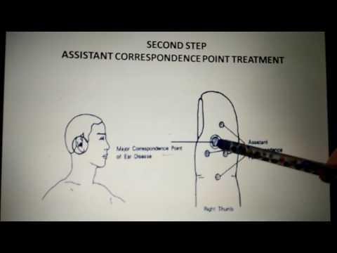 5 Steps Sujok Treatment Part A, Bhupinder Kaur Smile