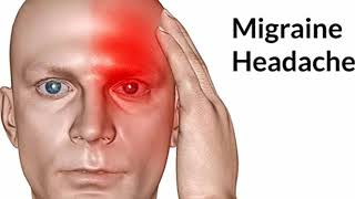 Easy Home Remedy for Migraine (Tamil)