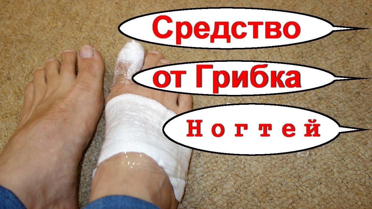 Народные способы избавления от грибка ногтей ног