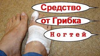Грибок ногтей на ногах. Народное лечение грибка -ноготь лечу грибок - № 1