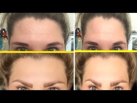 Forehead Wrinkles: How To Reduce And Prevent Forehead Wrinkles Naturally / How To Reduce And Preven