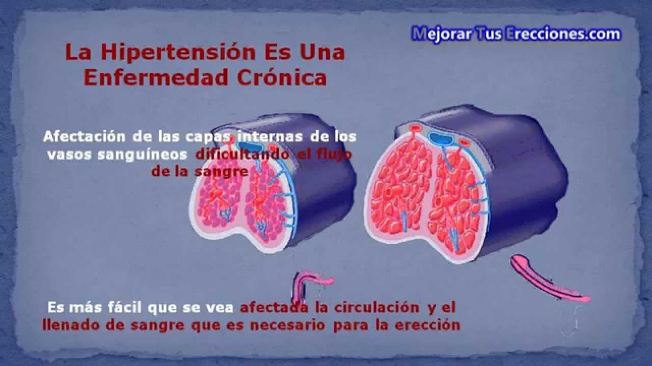 hipertensión que causa disfunción eréctil
