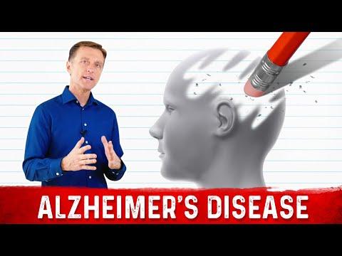 Alzheimer's Simplified