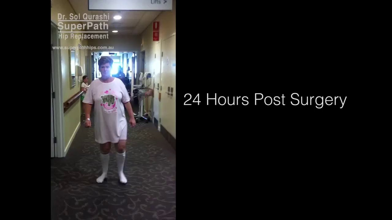Walking 24 Hours After Hip Replacement   SuperPath Hip Replacement