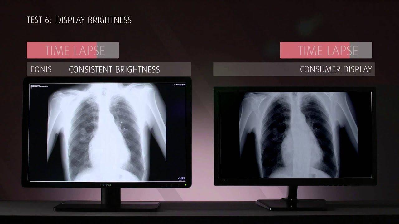 monitory medyczne sprz t stomatologiczny radiologiczny ersa medical. Black Bedroom Furniture Sets. Home Design Ideas