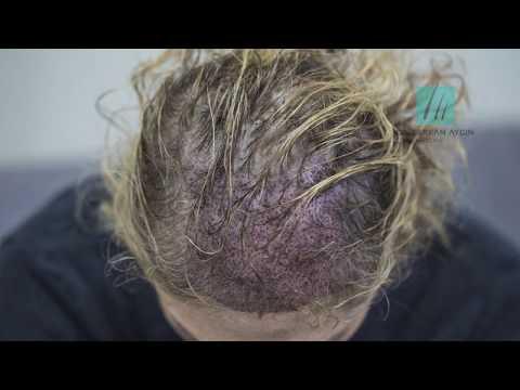DHI Hair Transplant Without Shaving I Dr. Serkan Aygın