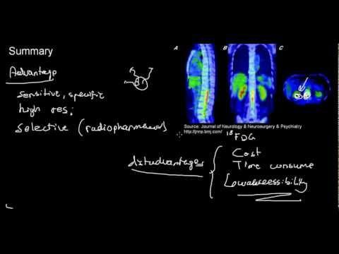 lecture 14 part 2 (PET, Positron emission tomography)