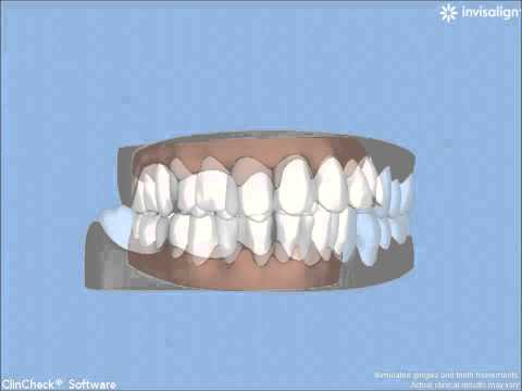Invisalign Gently Moves Teeth by Bruce Stephenson, DDS