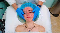 hqdefault - Skin Peeling Treatment For Acne
