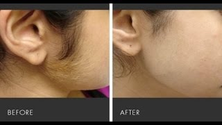 Ghair Zaroori Baal Khatam Karne ka Asan Totka (Remove unwanted hair/Hair Facial)Simple Secrets Tips