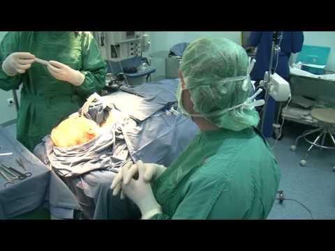 Подтяжка лба и шеи через разрез лица